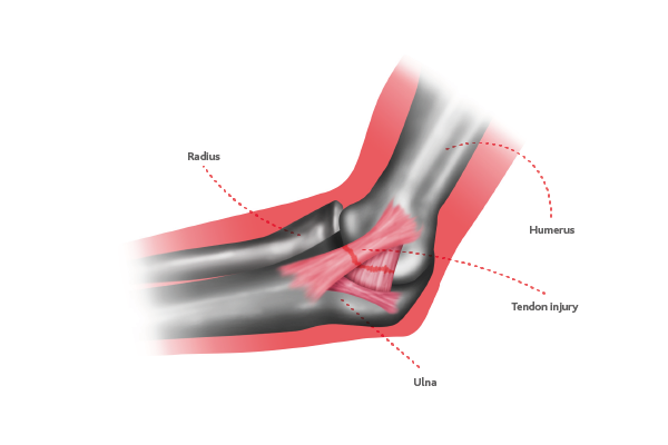 Elbow ligament injuries | Circle Health