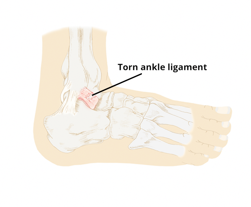 Lateral Ankle Ligament Injury Circle Health