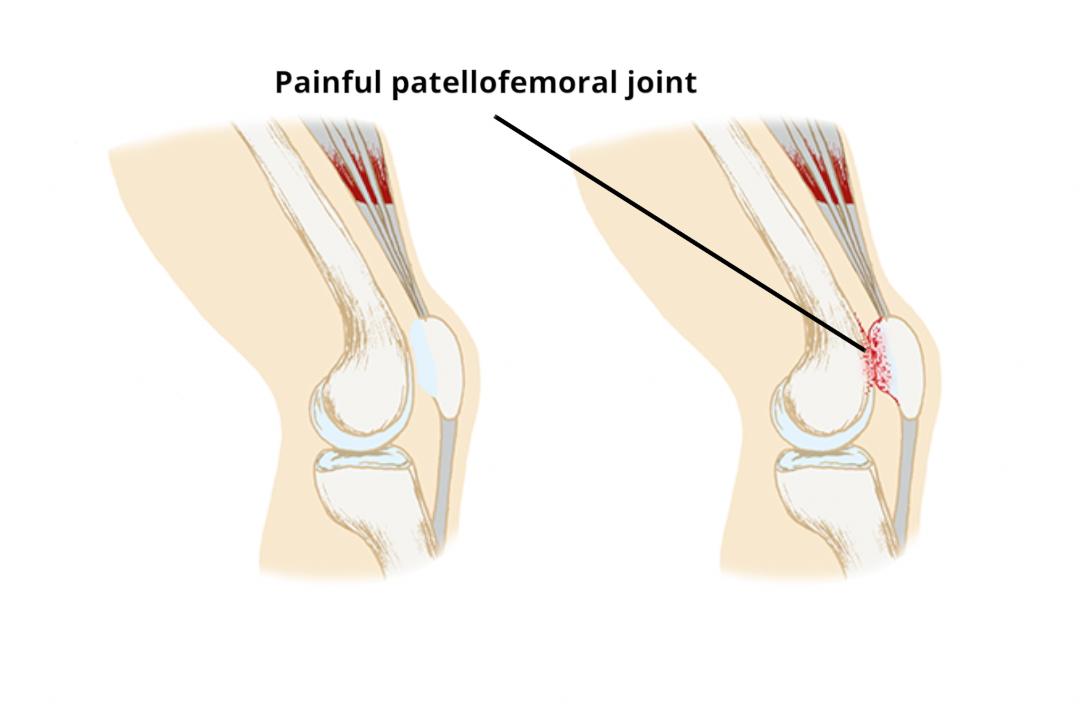 Anterior Knee Pain Patellofemoral Pain Syndrome Pfps